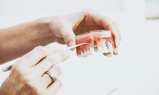 Ile trwa wszczepienie implantu zęba? Założenie implantów krok po kroku